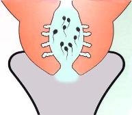 Qu'est ce qui perturbe le cycle menstruel